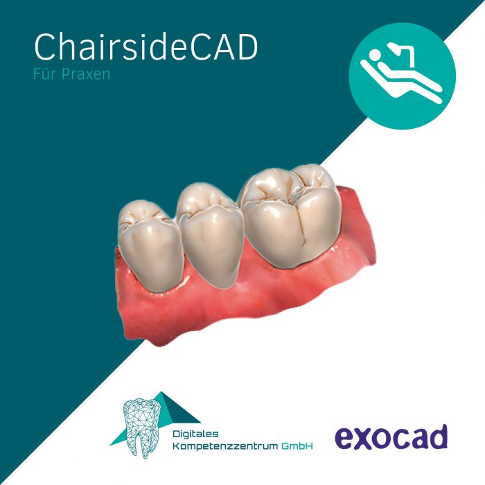 exocad_chairsidecad