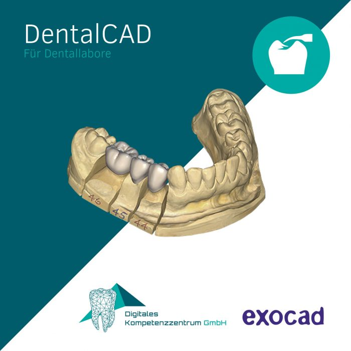exocad_dentalcad