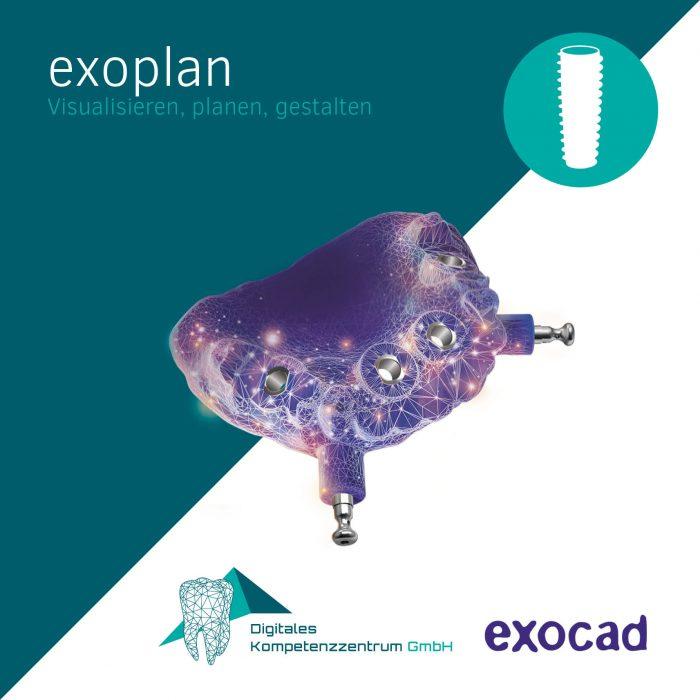 exocad_exoplan